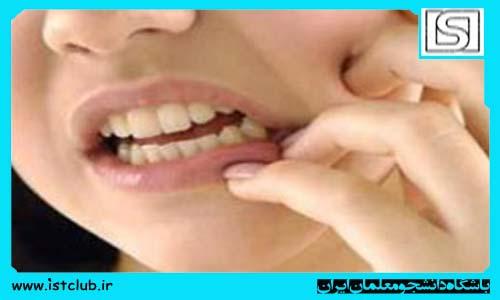 توصیههای بهداشتی نوروز/ مراقب دندانهای خود باشید